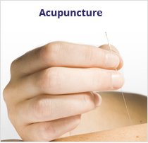 acupuncture médecine chinoise